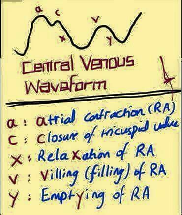 JVP Waveform