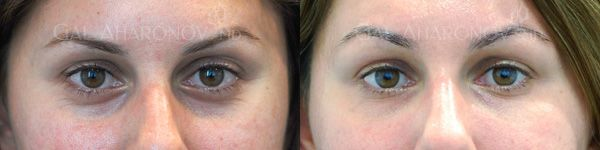 cosmetic surgery to remove dark eye circles | about under eye filler under eye dark circles treatment learn more ...
