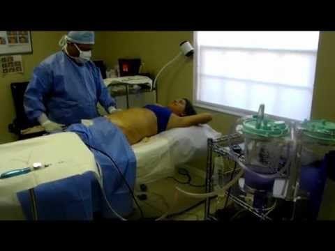 Live Liposuction Procedure at Adora Body Sculpting Clinic