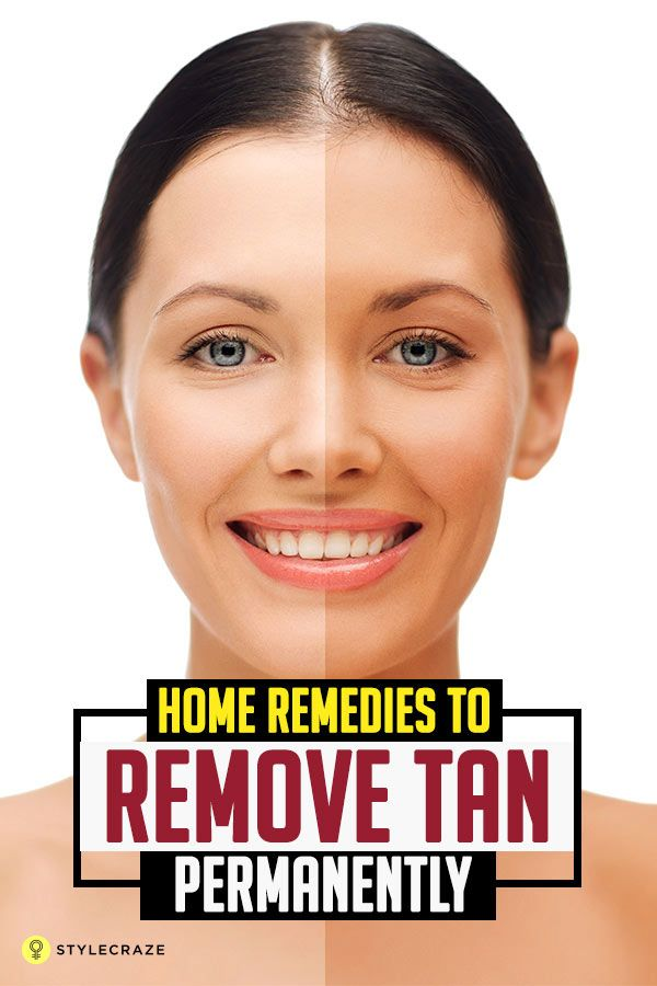 Dark tan lines, which may be accompanied by itching or burning sensation, or even sunburns can ruin your summer. We have put together the best tan removal home remedies that will surely help you get rid of that nasty tan. Let us look at the top 36 home remedies for tan removal. Top 36 Home Remedies To Remove Tan Permanently