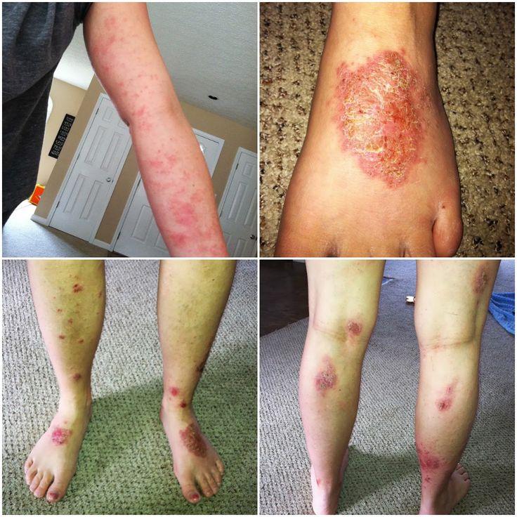 A Shotgun Approach To Treating Severe Eczema