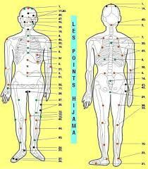 Discover Islam In Tamil: Special Report of Hijama (cupping therapy) Medical benefits...