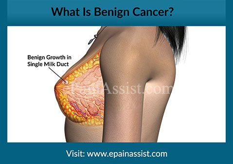 What Is Benign Cancer? Read: http://www.epainassist.com/question-and-answer/how-is-pain-generated-in-benign-and-malignant-cancer