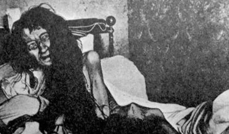 Blanche Monnier fue una mujer francesa secuestrada por su propia familia durante 25 años. Cuando la policía la rescató pesaba tan solo 25 kg.