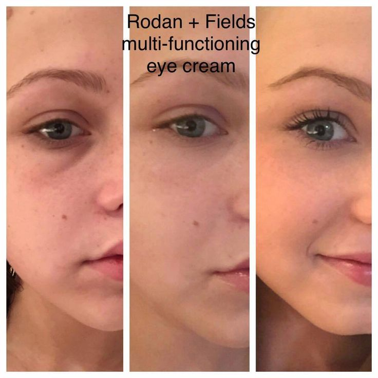 Haleigh Broucher is a 18 year old college student at Texas A&M AND she's a Rodan + Fields Consultant- SMART GIRL!These are her results with R+F's Multi-Function Eye Cream after only 2 hours. We all need eye cream, guys. Even 18 year olds!