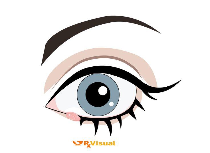 Rx Visual - Eye Stye: Home remedies, Treatment, Cure, Alternative Medicine, Herbal