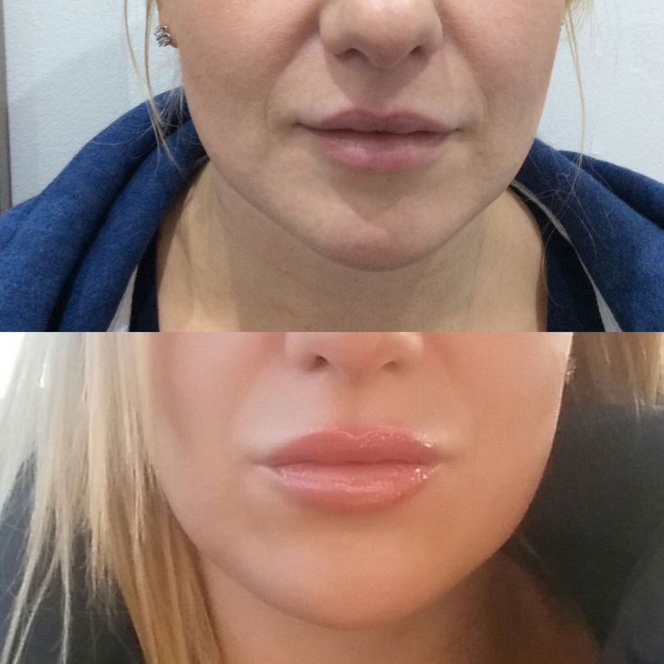 Lip Filler-lip augmentation, lip augmentation uk, lip augmentation cost, lip enhancement, lip enhancement uk, lip enhancement cost