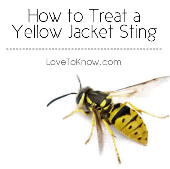 The most important thing to keep in mind for treatment for a yellow jacket sting is to act quickly and seek immediate attention if you are highly allergic to stings.