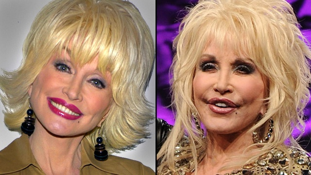 Natural Skin Care  ....  Chatter Busy: Dolly Parton Facelift