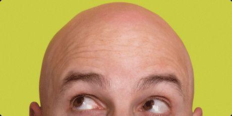 Die Haartransplantation bietet als echte Haarverpflanzung der eigenen Haare (Eigenhaartransplantation) bei fortschreitendem Haarausfall oder bereits ausgeprägter Glatze eine natürliche Möglichkeit, die Haardichte des Oberkopfes dauerhaft, unauffällig, nebenwirkungsfrei und binnen weniger Stunden zu erhöhen. Den typisch männlichen Mustern (Geheimratsecken, Stirnglatze, Vollglatze, Tonsur) des erblich bedingten Haarausfalls – sog. Alopecia androgenetica – wird damit wirkungsvoll begegnet.