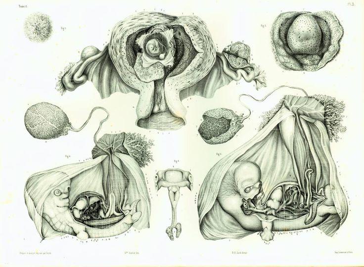 1854 Foetus Humain, Grand Format, Planche Anatomique Originale Bourgery, Poster Anatomie Obstétrique Gynécologie Embryologie de la boutique sofrenchvintage sur Etsy