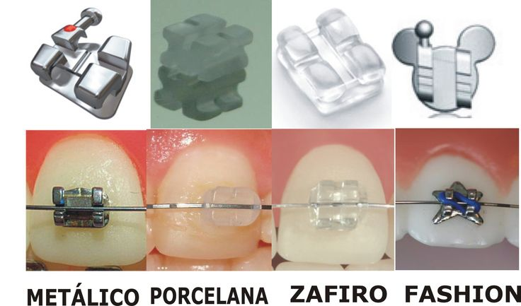 Tipos de brackets. Aparato dental tipos