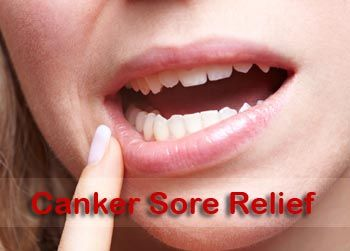 Canker Sore Relief