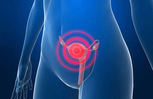 Notícias: Sinais de alerta sobre o câncer do útero