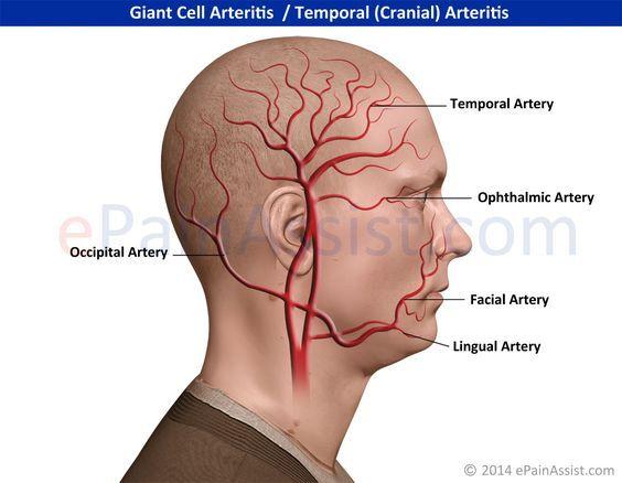 Giant Cell Arteritis/Temporal (Cranial) Arteritis Read: http://www.epainassist.com/autoimmune/giant-cell-arteritis-or-temporal-cranial-arteritis