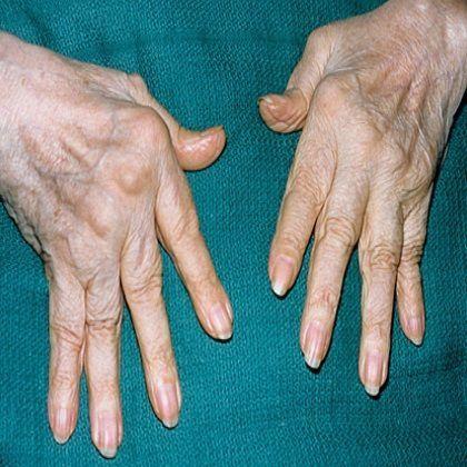 neurontin dosage for rheumatoid arthritis