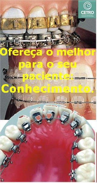 2013 [Curso] Ortodontia Lingual é no CETRO  Veja: http://www.cetrobh.com/2013/07/curso-ortodontia-lingual-e-no-cetro.html