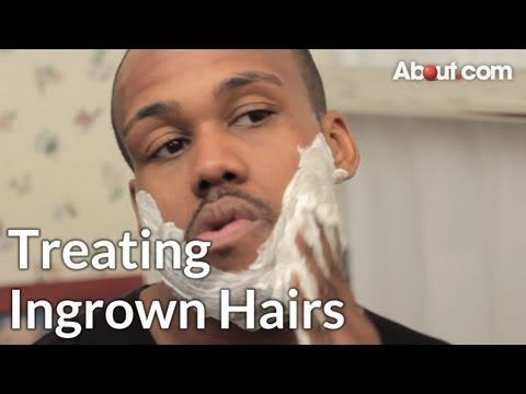 getting rid of ingrown facial hair