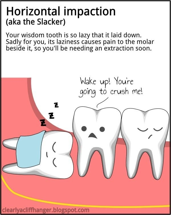 "Horizontal impaction wisdom tooth. Of course it's also know as ""The Slacker,"" seeing as I'm so lazy."