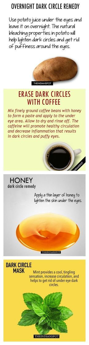 how to get rid of circles under eyes home remedies