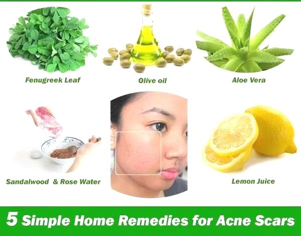 Remedies For Acne Scar Beauty Diy Acne Remedies Home Remedies