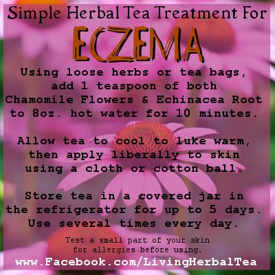 Home Remedies for Treating Eczema