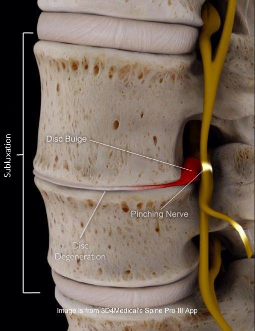 how to fix spinal subluxation