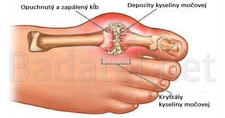 Bežné lieky proti bolestiam z kryštalizácie kyseliny močovej v kĺboch majú mnohé vedľajšie účinky. Namiesto nich skúste tieto prírodné veci.