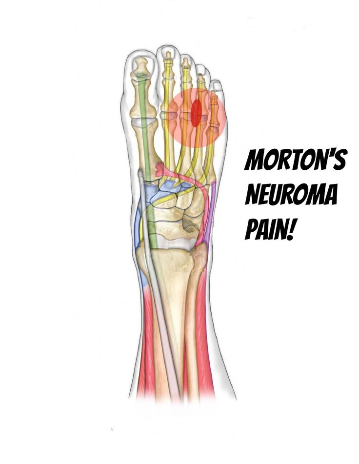 Morton's Neuroma information, stretches, and deep tissue releases : Team Doctors