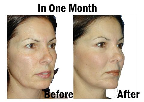 cheek implant before and after pics