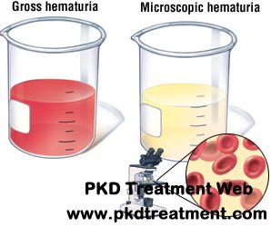 Hematuria means there are red blood cells in urine, which can be divided into two types: microscopic hematuria and gross hematuria. And the hematuria can be caused by many factors. For kidney cyst patients, hematuria is a common symptom for them. Then how does kidney cyst cause hematuria? And how to treat the hematuria for kidney cysts?
