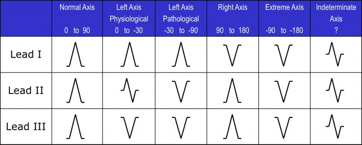 Bifascicular blocks what you need to know ecg medical