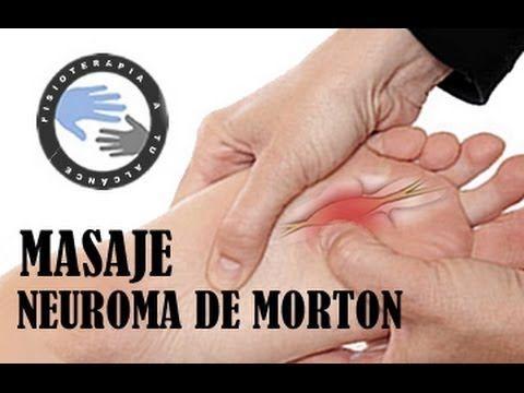 ▶ Neuroma de Morton, masaje y ejercicios / Fisioterapia a tu alcance - YouTube