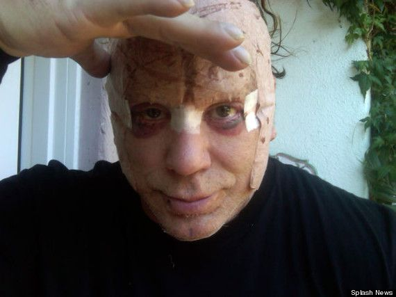 Ouch  mickey rourke plastic surgery