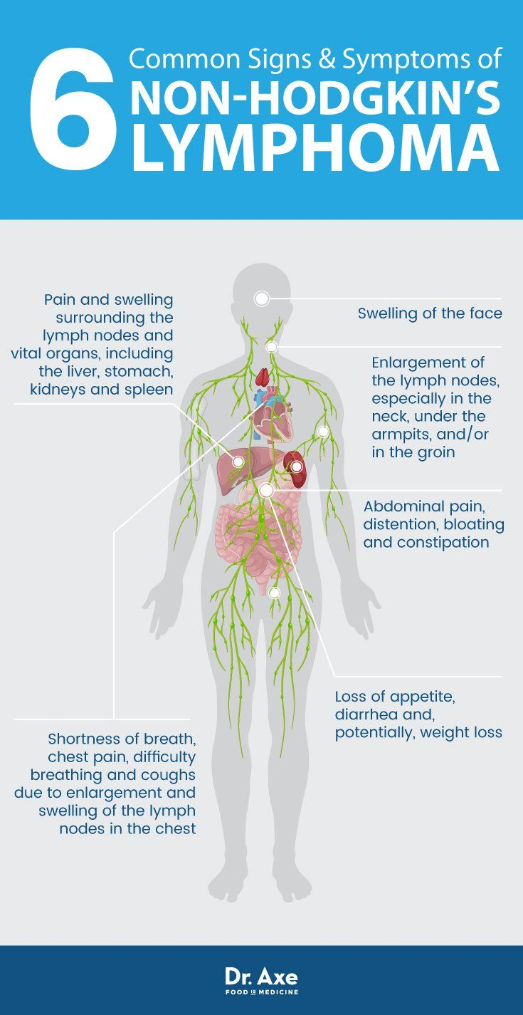 Non-Hodgkin's Lymphoma: Natural Symptom Management | Food ...