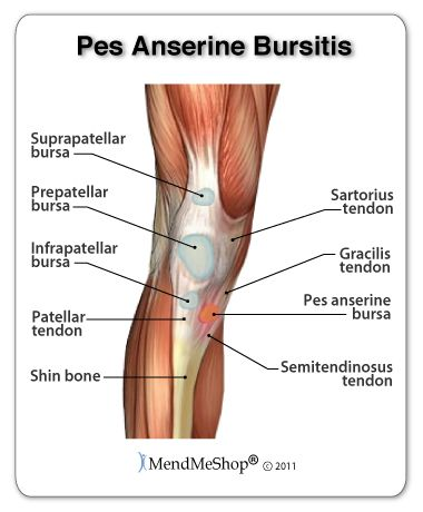 pes anserine bursitis - It is important to treat bursitis in the early stages to reduce the symptoms, minimize damage and maintain motion and strength in your knee. Eliminate any squatting, repetitive knee bending, crossing your legs, kneeling or any other activities that add pressure on your bursa. Treat your knee bursitis in the early stages with cold compression therapy and Blood Flow Stimulation Therapy, to prevent long-term damage and chronic conditions from setting in.