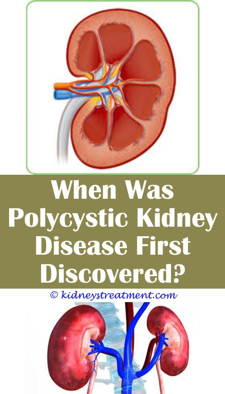 Kidney disease families kidney infection pain pinterest kidney kidney disease families kidney infection pain pinterest kidney disease chronic kidney disease and cure ccuart Choice Image