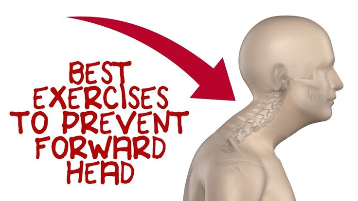 Forward Head Exercises to Fix Forward Head Posture - YouTube