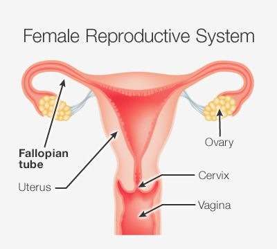 An ovarian cyst is a fluid-filled sac that develops on or in the ovaries, the female reproductive organs that produce and store eggs.