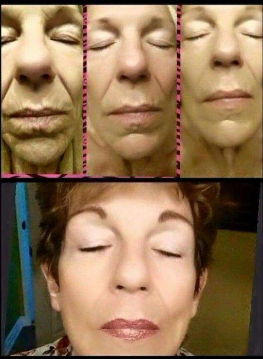 Rejuvenation serum before & after