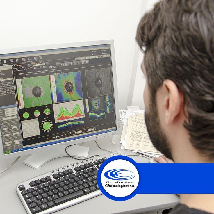Con el fin de controlar el edema macular de la retina contamos con el procedimiento de cirugía láser para eliminar la acumulación de líquido dentro de la misma. #CiugíasCEO www.ceomedellin.com