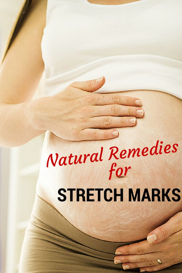 Stretch Marks: Common Causes, Prevention & Treatment ...