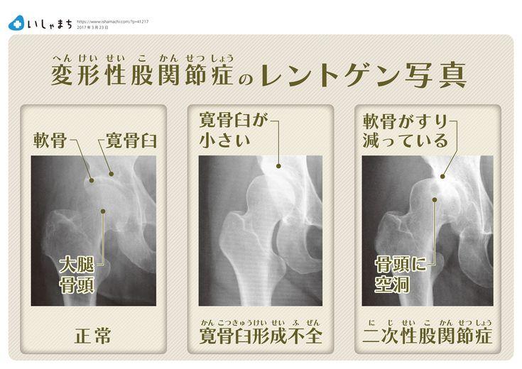 変形性股関節症のレントゲン写真解説  #infographics