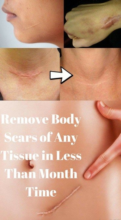 Every tissue that has a scar will make you feel unconfident and less attractive. But with natural cures, you can make those scars disappear forever or at least fade a lot. You might be fooled to th…