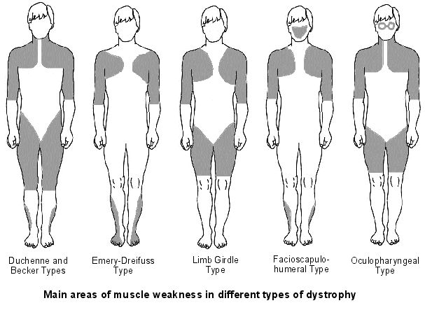 NBCOT! Muscle groups affected by different types of muscular dystrophy. Repinned by SOS Inc. Resources.  Follow all our boards at http://pinterest.com/sostherapy  for therapy resources.