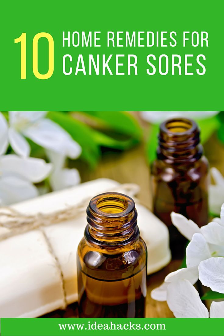 how to get rid of canker sores home remedies
