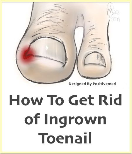 Natural Home Remedy for Ingrown Toenails #toenail #naturalremedies #homeremedy #ingrowntoenail