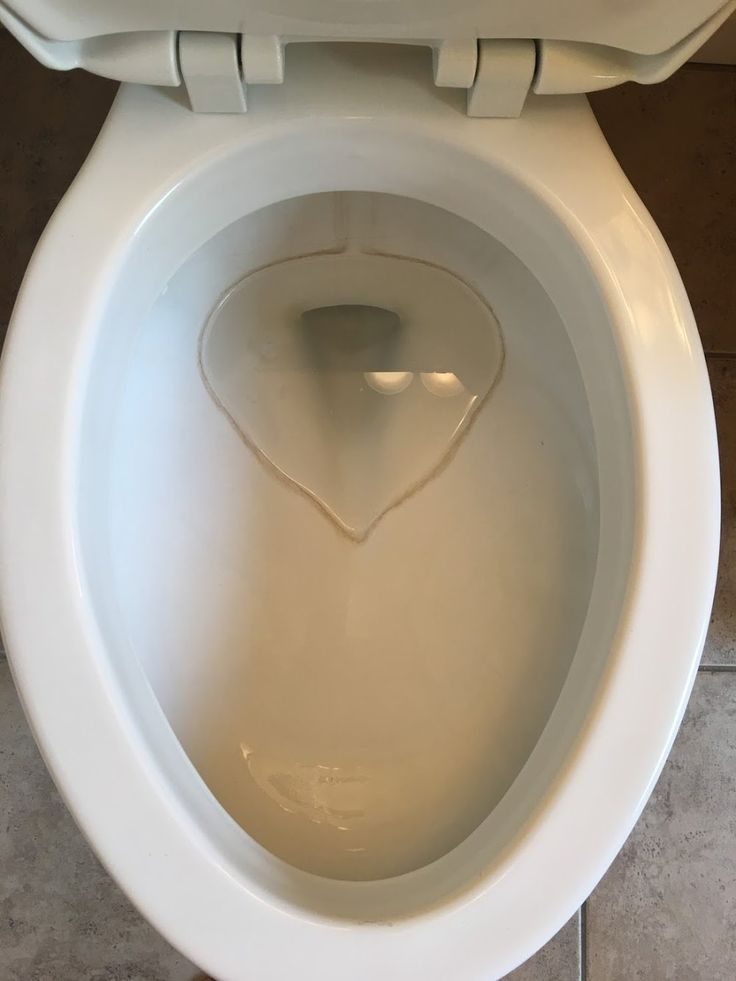 I am here today to talk about toilets. Toilets are nasty, disgusting and completely necessary... Read Post