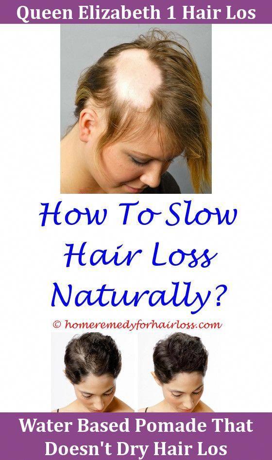 Hair Loss Chemo Drugs Causing Hair Loss Male Hair Loss Best