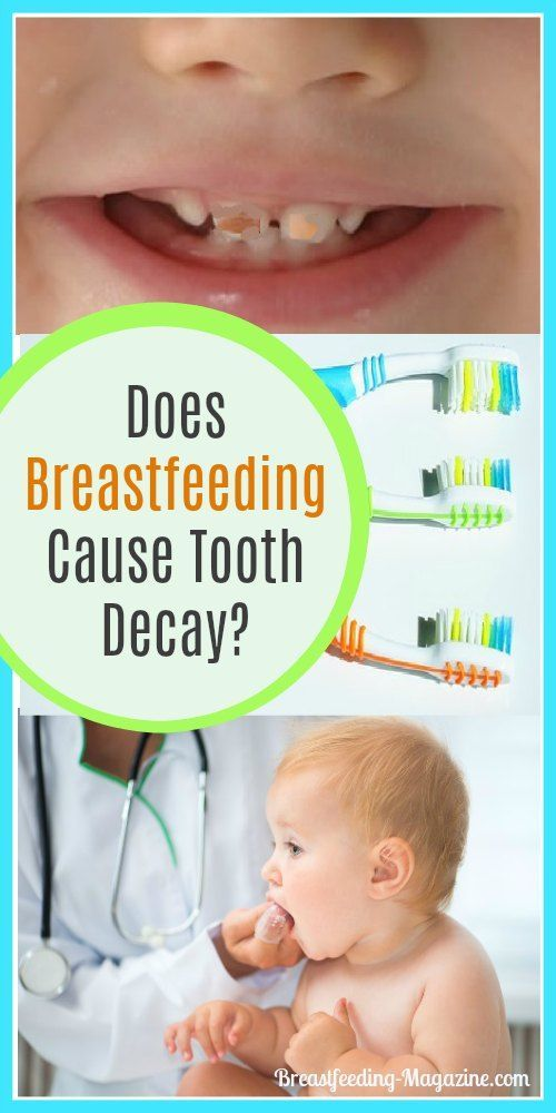 Have you heard that breastfeeding can cause tooth decay?  Before breastfeeding moms start to worry about their babies, you should get the facts.  #breastfeeding #teeth #dentalhealth